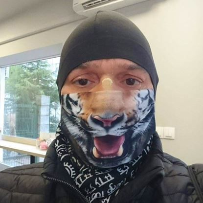 Evercover - TIGER- REALISTIC FACE MASK